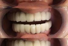 Лечение зубов 2018_09_3