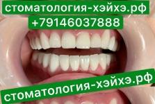 Пример лечения зубов_1