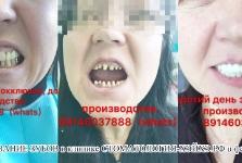 Протезирование зубов в 2017 г. февраль_1