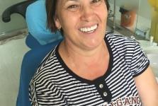 Лечение зубов в июле 2016 года. Фото довольных пациентов_1