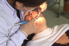Лечение зубов в июле 2016 года. Фото довольных пациентов_2