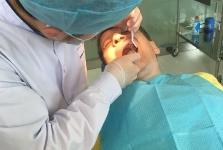 Лечение зубов в июле 2016 года. Фото довольных пациентов_3