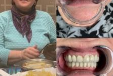Стоматология в Китае март 2019_13