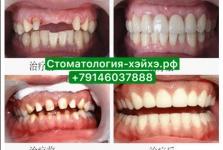 Стоматология в Китае, г. Хэйхэ_13