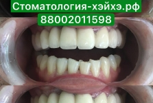 Стоматология в Китае, г. Хэйхэ_14