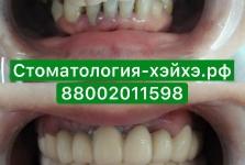 Стоматология в Китае, г. Хэйхэ_16