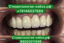 Стоматология в Китае, г. Хэйхэ_17