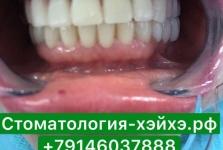 Стоматология в Китае, г. Хэйхэ_18