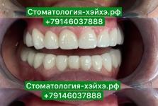 Стоматология в Китае, г. Хэйхэ_1