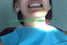 Лечение зубов в Китае. Июль 2017_1