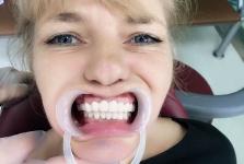 Протезирование зубов в Китае август 2017_2