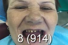 Протезирование зубов в Хэйхэ_май 2018_4