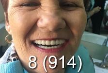 Протезирование зубов в Хэйхэ_май 2018_6