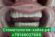 Отызы о стоматологии в Китае 2019_3