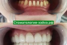 Стоматология в Китае, г. Хэйхэ_20
