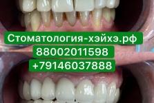Стоматология в Китае, г. Хэйхэ_23