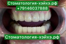 Стоматология в Китае, г. Хэйхэ_27