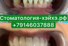 Стоматология в Китае, г. Хэйхэ_28