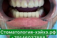 Стоматология в Китае, г. Хэйхэ_30
