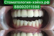 Стоматология в Китае, г. Хэйхэ_4