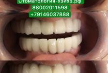 Стоматология в Китае, г. Хэйхэ_7