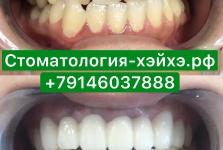 Стоматология в Китае, г. Хэйхэ_9