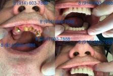 Металлокерамика плюс бюгельный протез верхней челюсти_1